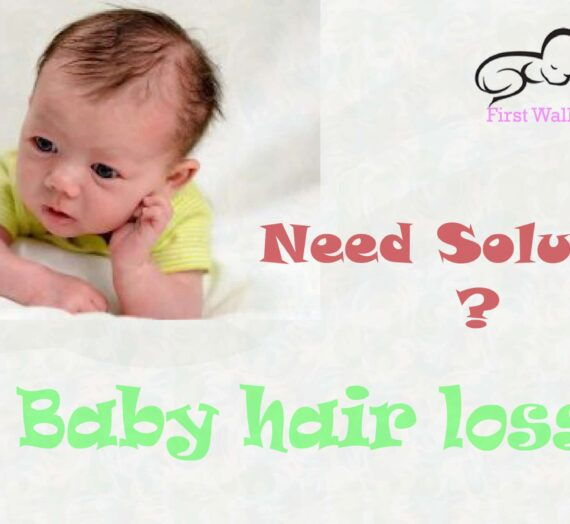 Baby hair loss: How To Solve